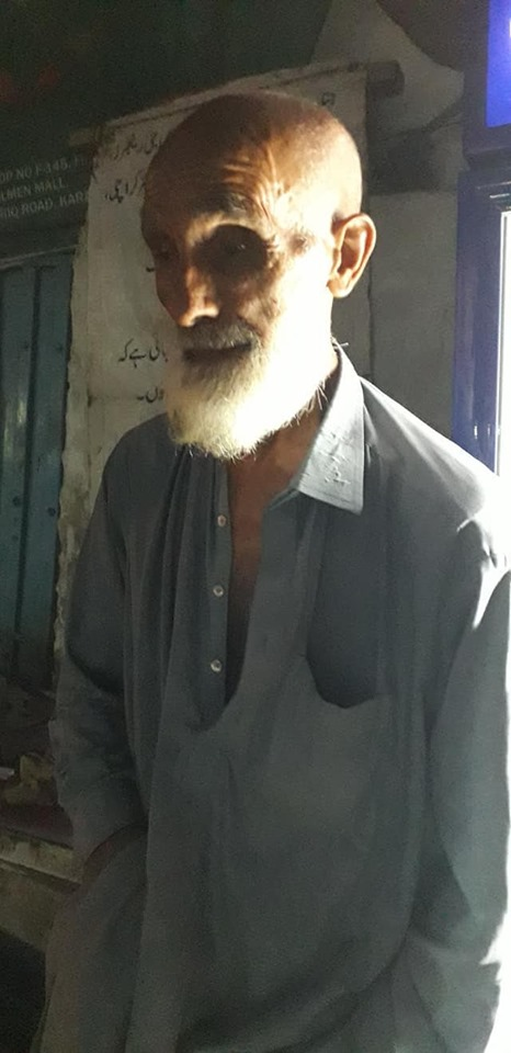 Hardworking Blind Man Lost Eyes In Bomb Blast